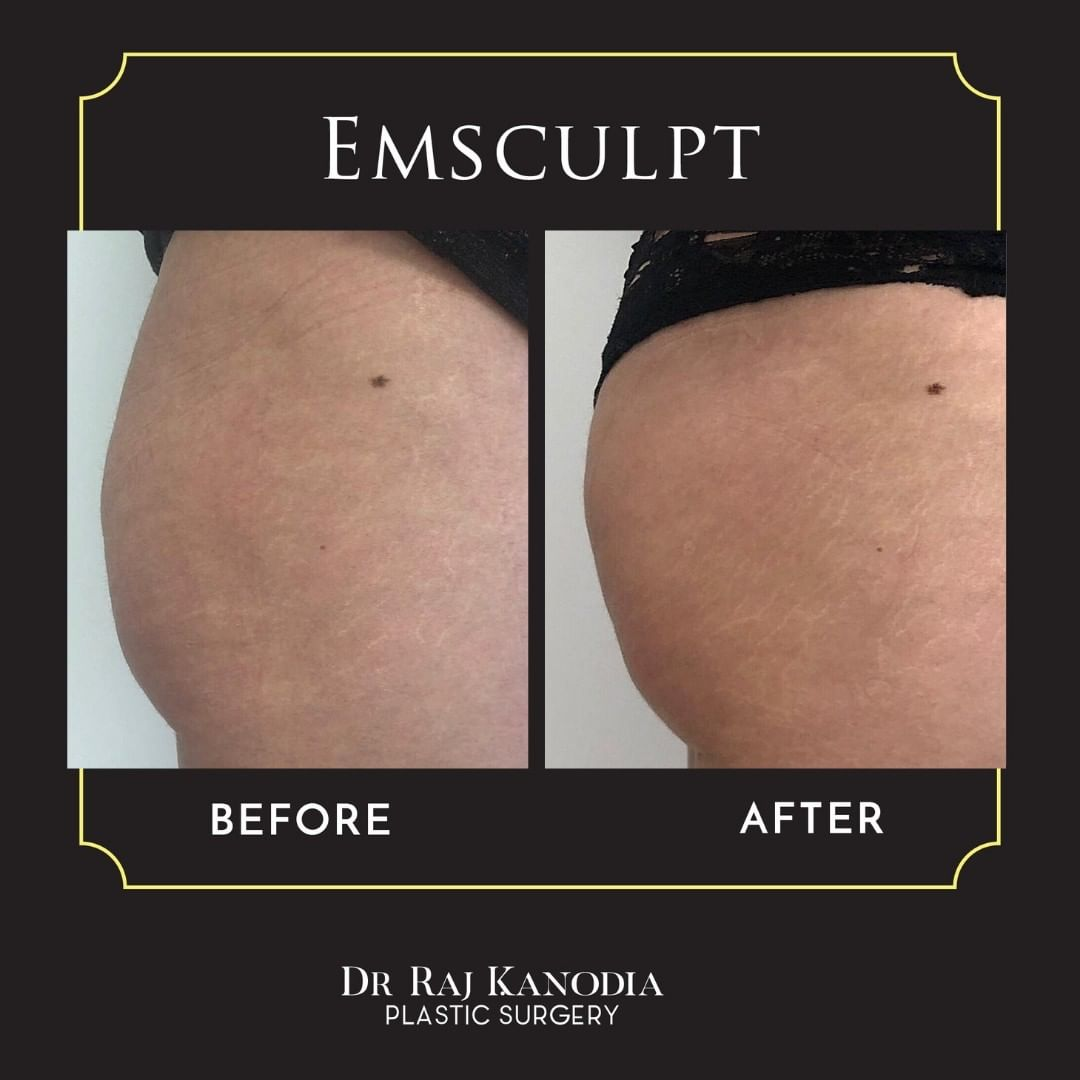 Emsculpt Body Sculpting Treatment